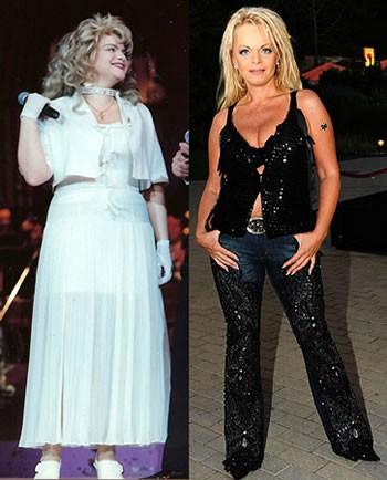 Лариса Долина фото до и после