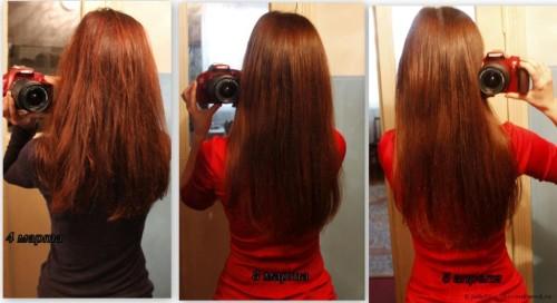 никотиновая кислота для укрепления волос фото