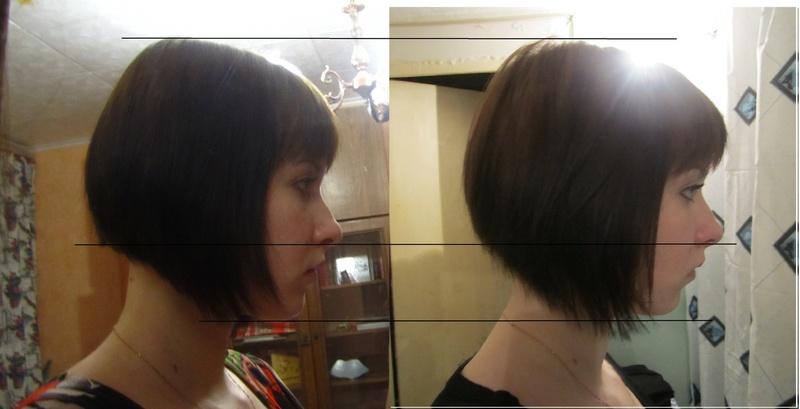 применение никотиновой кислоты, фото до и после